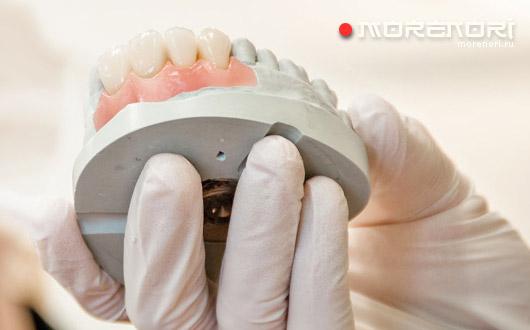 процедура протезирования зубов
